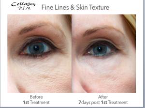 microneedling skin wrinkles fine lines